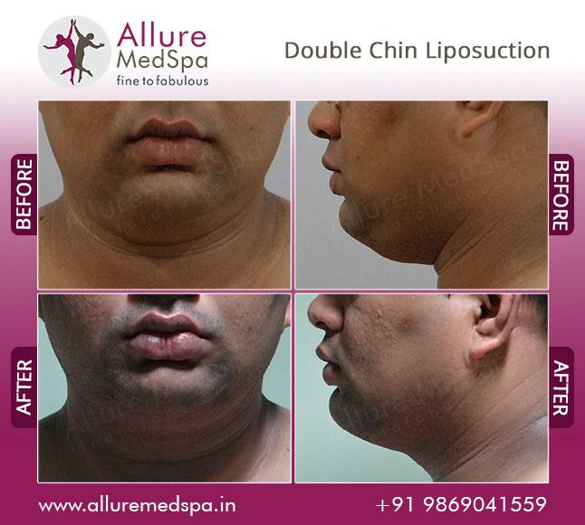 Neck Laser Liposuction Before and After Photos Mumbai, India