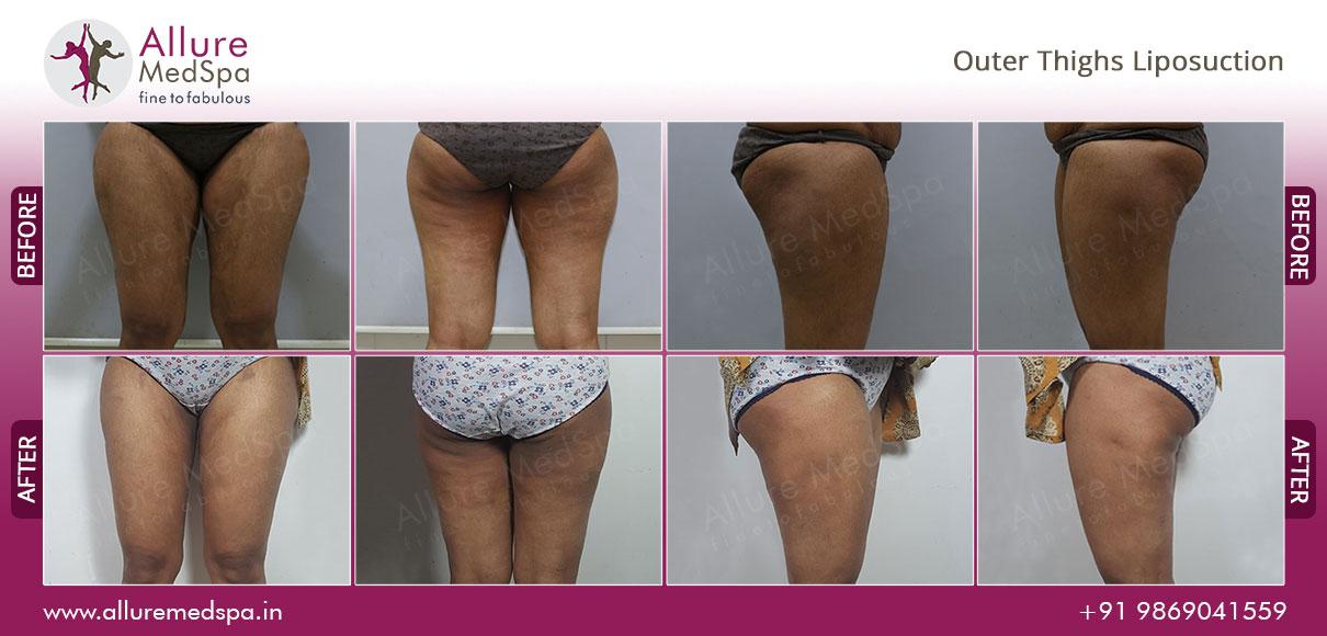Saddlebag Vaser Liposuction after sugery photos by Dr. Milan Doshi at Alluremedspa Mumbai, India