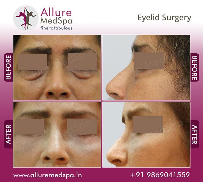 Blepharoplasty Eyelid Surgery bags under the eyes lower lids Before and After Images Mumbai, India